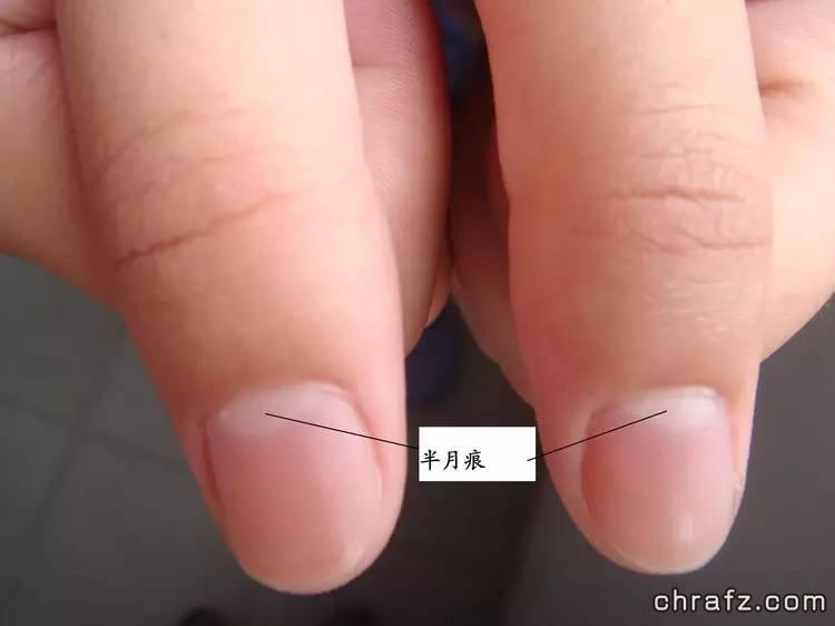 """【知说】指甲上的""""月牙"""", 真的是健康的血条吗?-张弦先生-chrafz.com"""